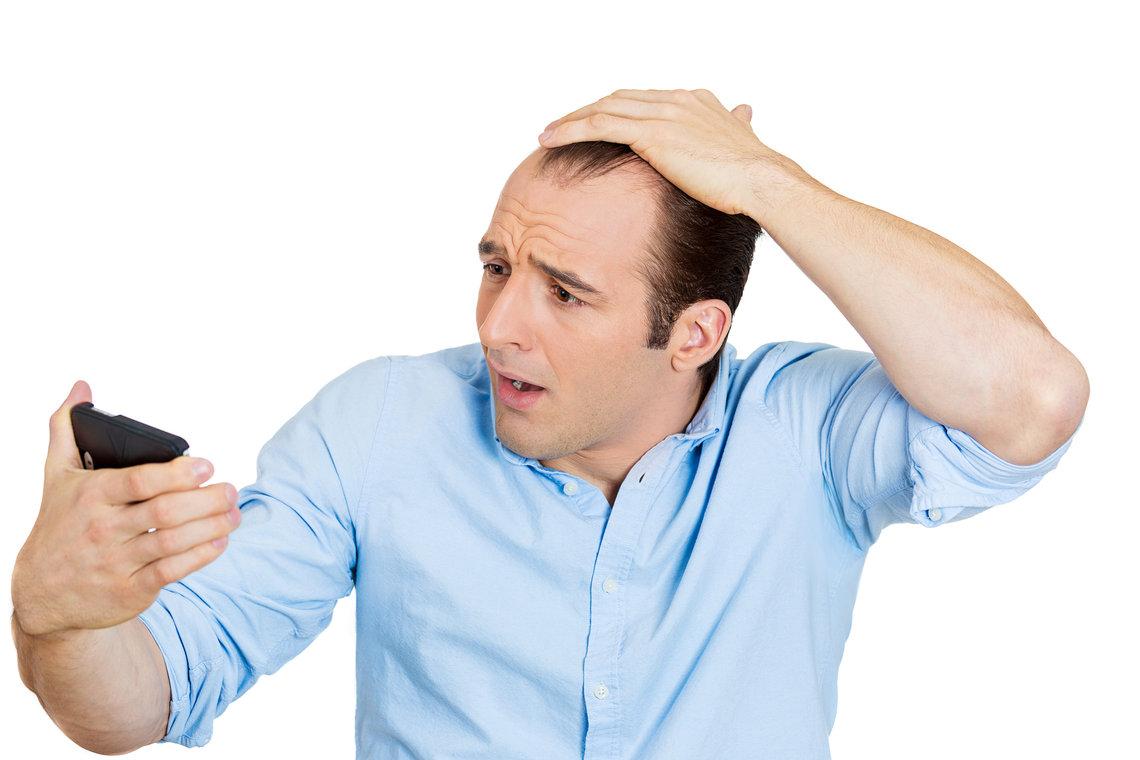 العلاج بالطبيعة 2019_علاج تساقط الشعر