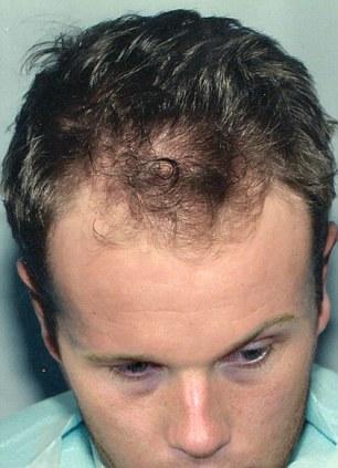 قبل عملية زراعة الشعر