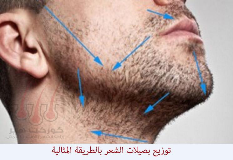 توزيع بصيلات الشعر بطريقة صحيحة في عملية زراعة الذقن