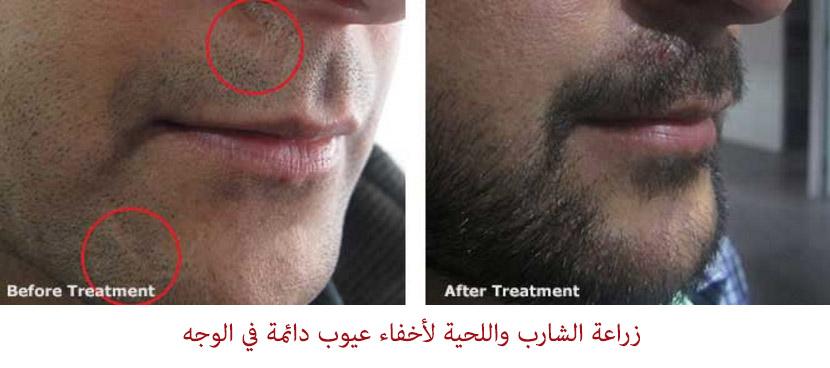 زراعة الشارب واللحية لإخفاء عيوب دائمة في الوجه