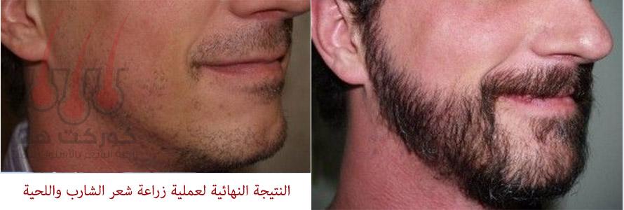 نتيجة نهائية بعد نجاح عملية زراعة شعر اللحية والشارب