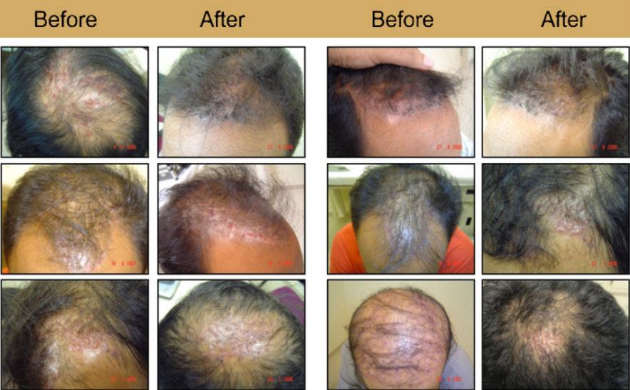 صور قبل وبعد عملية زراعة الشعر الصناعى