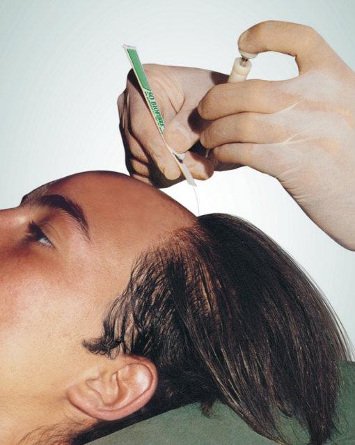 طريقة من طرق عملية زراعة الشعر الصناعى