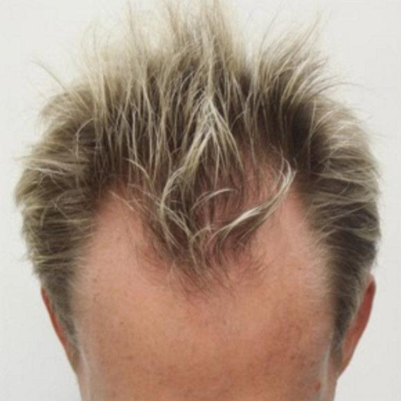 نتائج زراعة الشعر الصناعى 1