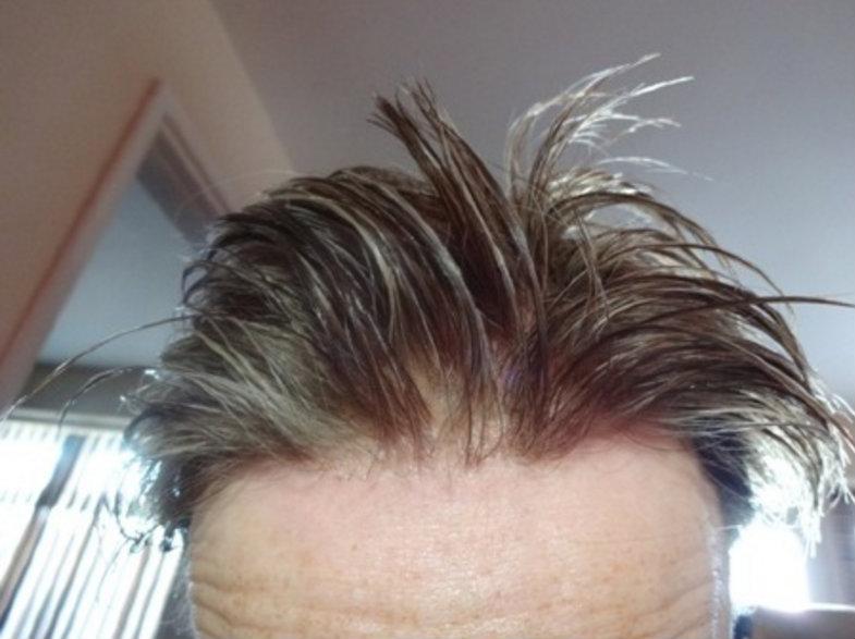 نتائج زراعة الشعر الصناعى 2
