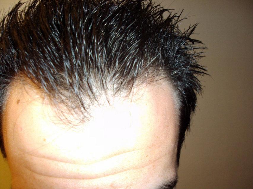 نتائج عملية زراعة الشعر الصناعى 3