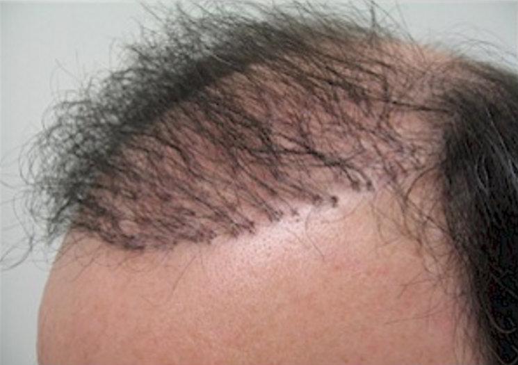 نتائج عملية زراعة الشعر الصناعى 4