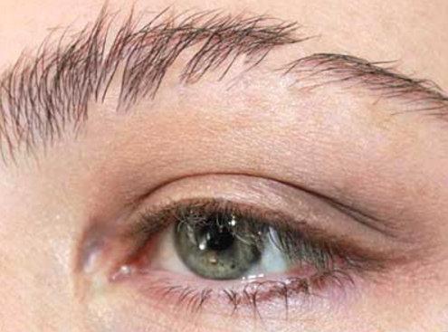 نتيجة أولى بعد زراعة شعر الحاجبين