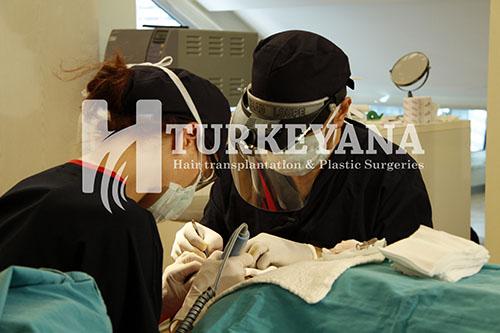 زراعة الشعر في تركيانا للجراحات التجميلية
