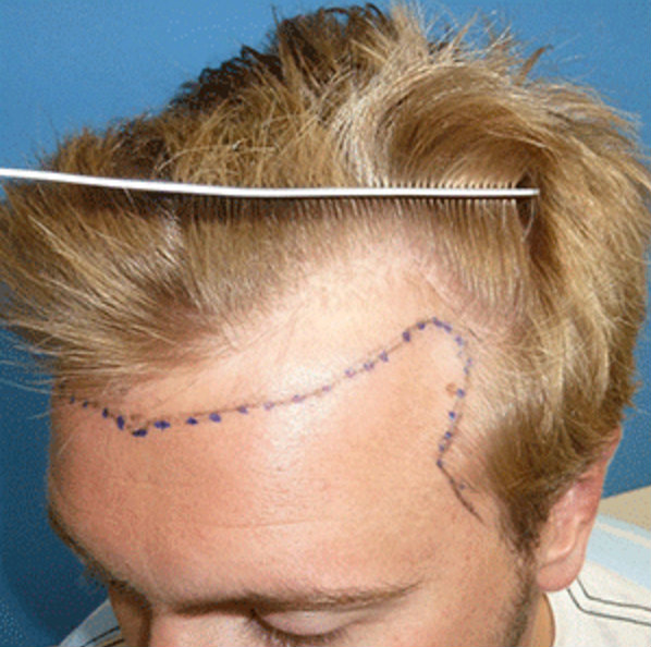 Drawing hair line in front of the Hair Transplant.