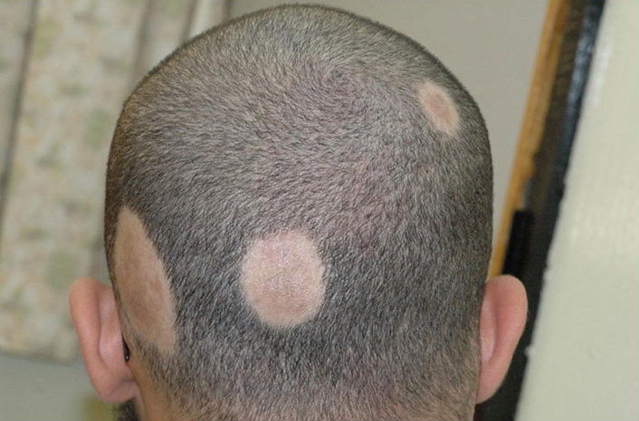 Hair transplants for patients with alopecia