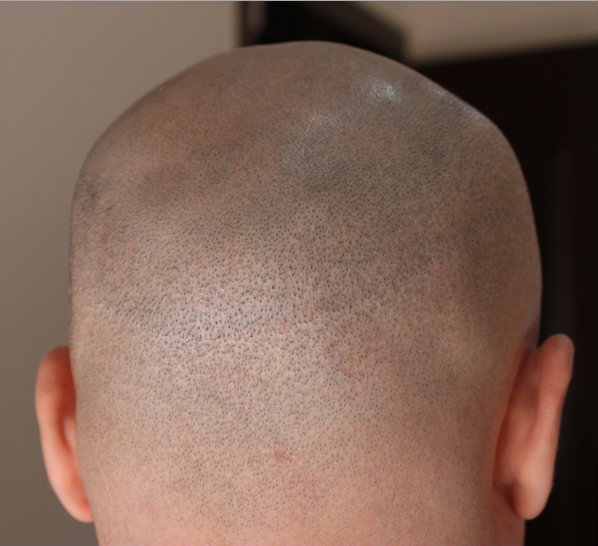 Shaving hair transplant FUT.