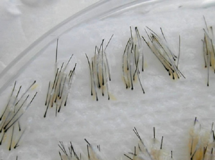 الوحدات الجريبية لبصيلات الشعر بعد الإقتطاف وقبل الزراعة بدون جراحة FUE