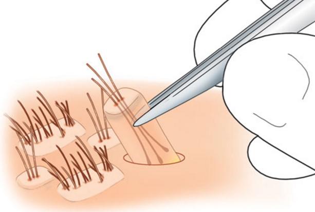 FUE إقتطاف الشعر قبل زراعته بدون جراحة الطريقة التقليدية
