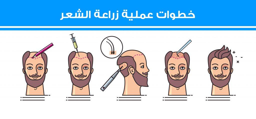 مراحل عملية زراعة الشعر