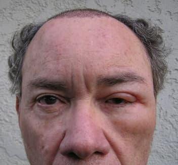الاستسقاء أحد أضرار عملية زراعة الشعر