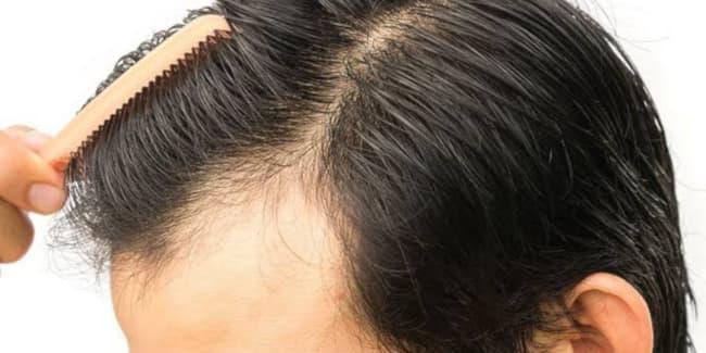 مريض مناسب حتى لا تحدث زراعة شعر فاشلة