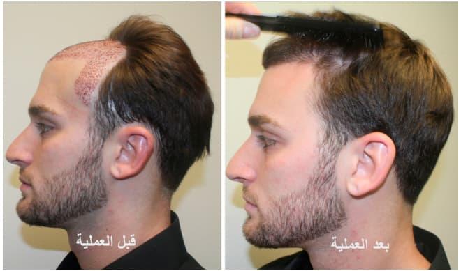 بعد زراعة الشعر بسنه