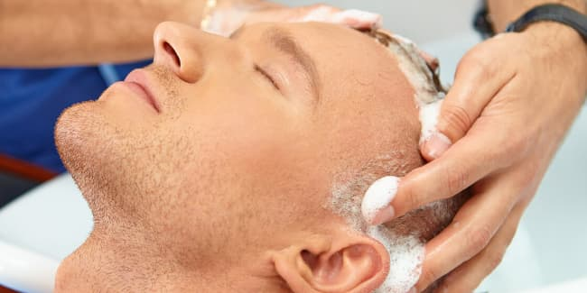 غسل الشعر بعد عملية زراعة الشعر