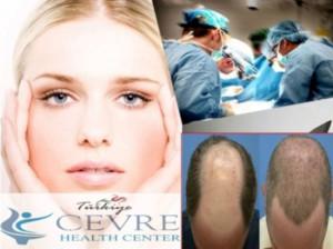 مستشفى تشيفري التركي لزراعة الشعر