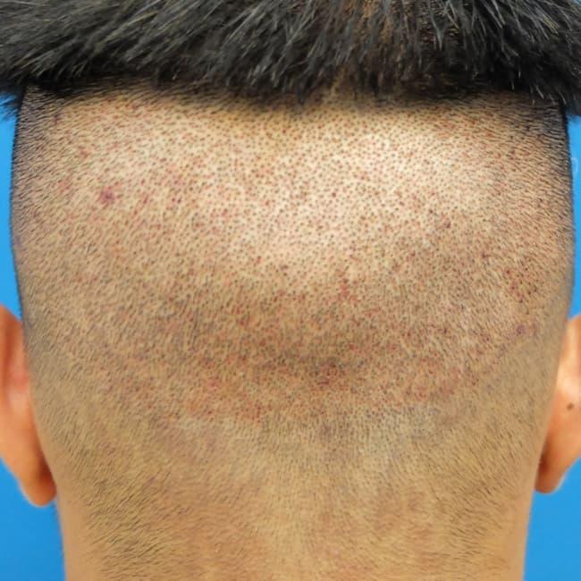 ندبات نطقية على مساحة واسعة نتاج لعمية زراعة الشعر بالاقتطاف
