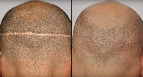 ندبة حطية ناتجة عن عملية زراعة الشعر بالشريحة